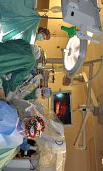 Robotic SS Hysterectomy